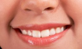 Low-carb diets and dental health